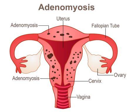 Adenomyosis,a gynecologic medical condition