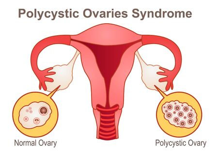 Polycystic Ovaries Syndrome, a gynecologic medical condition Illustration
