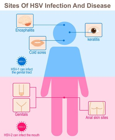 Sites Of HSV Infection And Disease Ilustrace