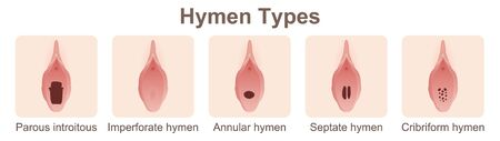 Hymen Types concept