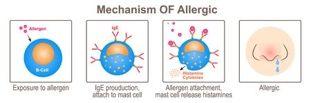 Mechanism Of Allergic Stock Illustratie