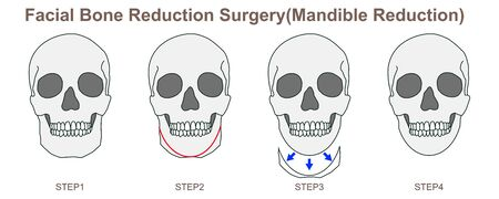 Facial Bone Reduction Surgery (Mandible Reduction) 일러스트