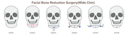 Facial Bone Reduction Surgery(Wide Chin) 스톡 콘텐츠 - 127492885