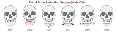 Facial Bone Reduction Surgery(Wide Chin)