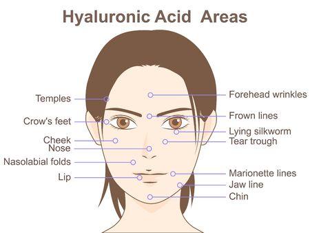 Hyaluronsäure-Bereiche