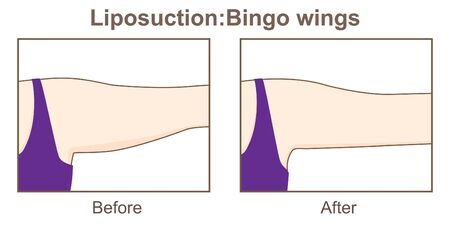 Liposuction-Bingo wings