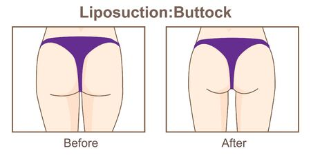 Liposuction-Buttock