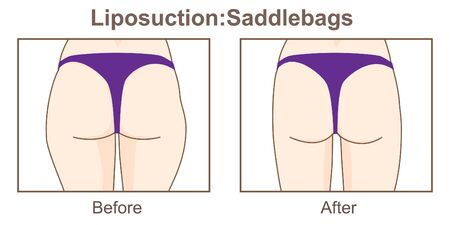 Liposuction-Saddlebags