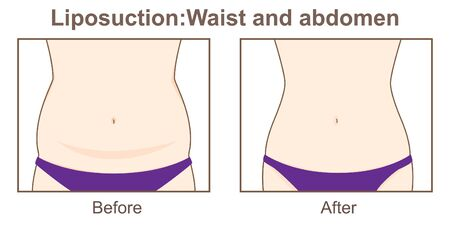Liposuction-Waist and abdomen