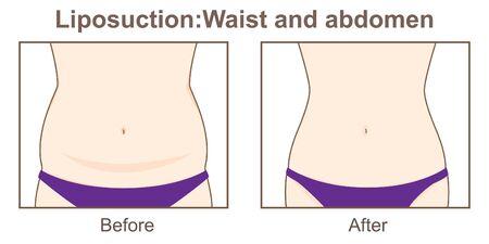 Liposuction-Waist and abdomen