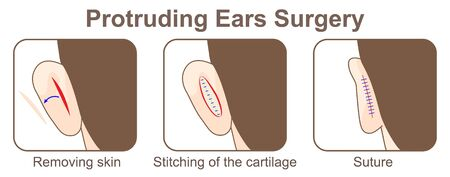 Protruding Ears Surgery
