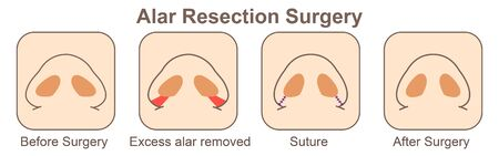Alar Resection Surgery