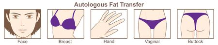 Autologous Fat Transfer 일러스트