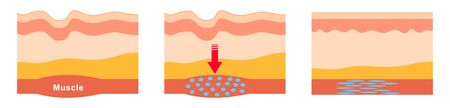 a drug prepared from the bacterial toxin botulin, used medically to treat certain muscular conditions and cosmetically to remove wrinkles by temporarily paralyzing facial muscles