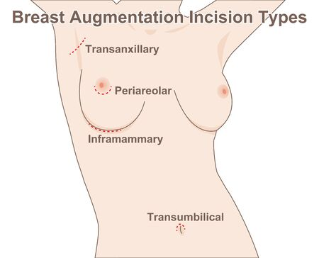 Breast Augmentation Incision Types 일러스트