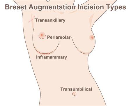 Breast Augmentation Incision Types Illustration