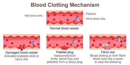 Blood Clotting Mechanism