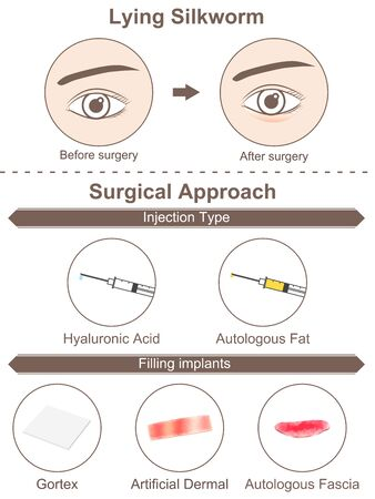 Lying Silkworm-Surgery