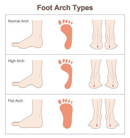 Rodzaje łuków stopy Ilustracje wektorowe