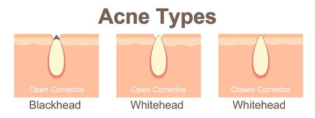 Acne types 일러스트