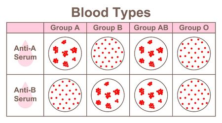 Blood Types, determination of ABO blood grouping