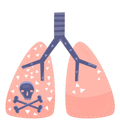 chronic bronchitis: A concept for lung cancer or lung disease  Illustration
