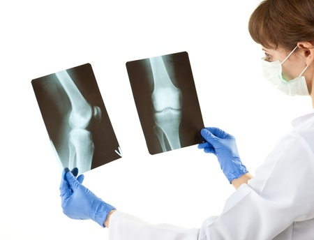 Female doctor examining X-rays isolated on white photo