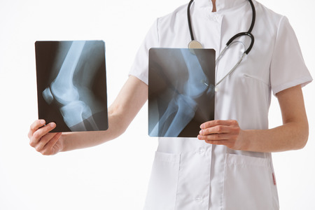 articulation: Doctor comparing X-rays with each other, white background