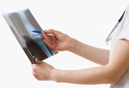 articulation: Doctor examining a X-ray, white background