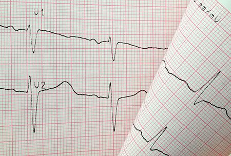 cardiological: ekg test