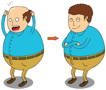 hombre calvo: después de tratamiento para el cabello