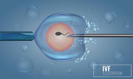 In Vitro Fertilization injection. Artificial insemination. Illustration