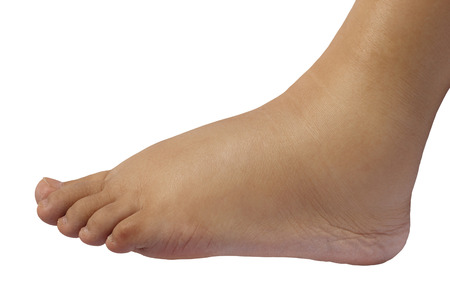 Close up of the puffy foot of a 35 weeks pregnant woman, isolated in white background Stockfoto