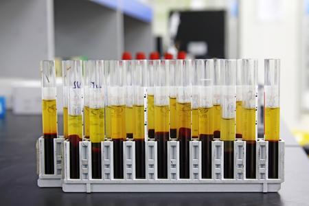 precipitation: Laboratory tests glass tube, closeup of photo