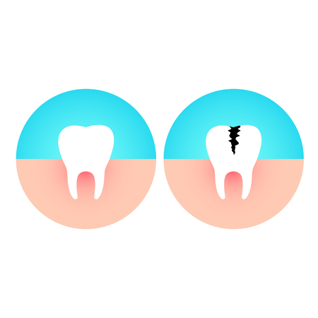 Healthy and damaged tooth. Caries disease flat vector illustration.