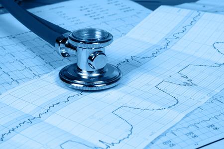 elettrocardiogramma: Lo stetoscopio e l'elettrocardiogramma Archivio Fotografico