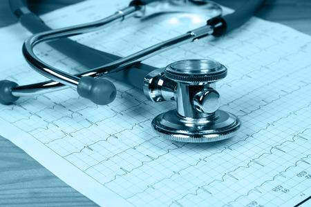 electrocardiograma: The stethoscope and electrocardiogram
