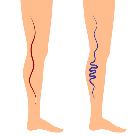 malady: Vector illustration leg veins. The concept of varicose disease. Silhouette of legs on an isolated white background.