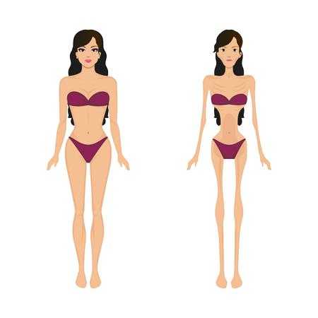 Ilustración vectorial de dibujos animados anorexia femenina. Enfermedad de bulimia femenina. Comparación de una niña antes y después de la anorexia. Paciente delgada mujer delgada. Imagen, dibujo, imagen aislada sobre fondo blanco.