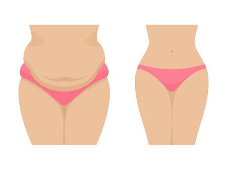 Vector illustratie van een dikke en dunne vrouwelijke buik