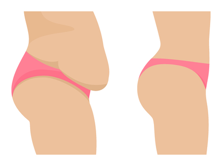Vector female abdomen before after losing weight