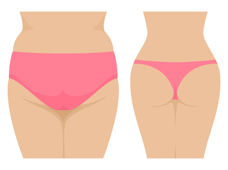 Vector female fat and thin ass before and after