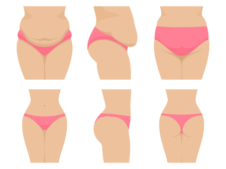 Vector set female waist before after losing weight