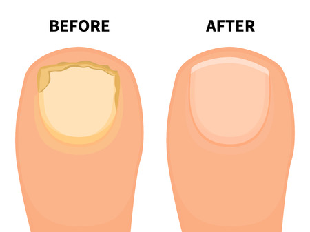 Vector toe nail before and after fungal disease Illustration