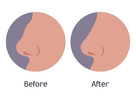 Ilustración de vector de una nariz antes y después de la cirugía plástica. Nariz hermosa femenina después de la rinoplastia. Operación de corrección. Vista lateral, perfil, estilo plano. Ilustración de vector