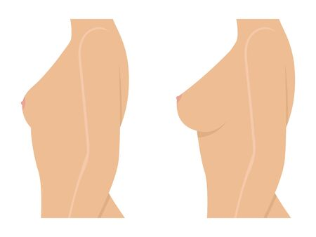 Female breast before and after augmentation