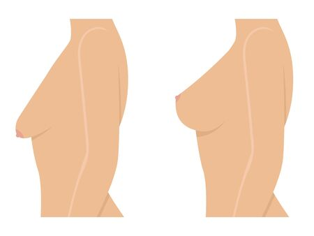 Woman before and after breast uplift Ilustração