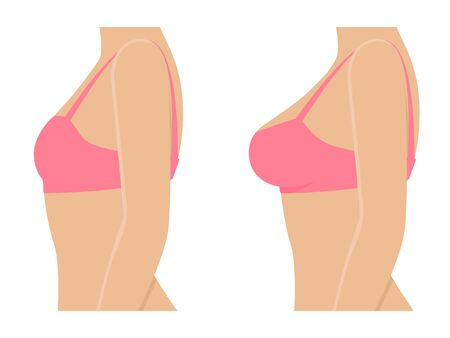 Female breasts in bra before after augmentation