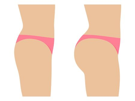 Female ass before and after plastic surgery