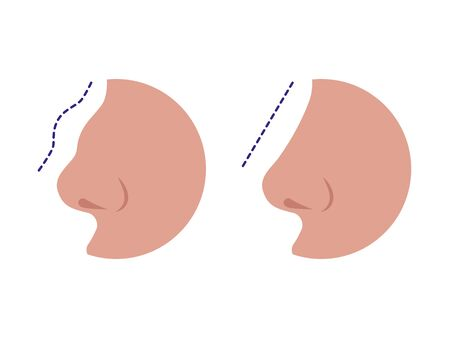 Nose before and after rhinoplasty correction Illusztráció